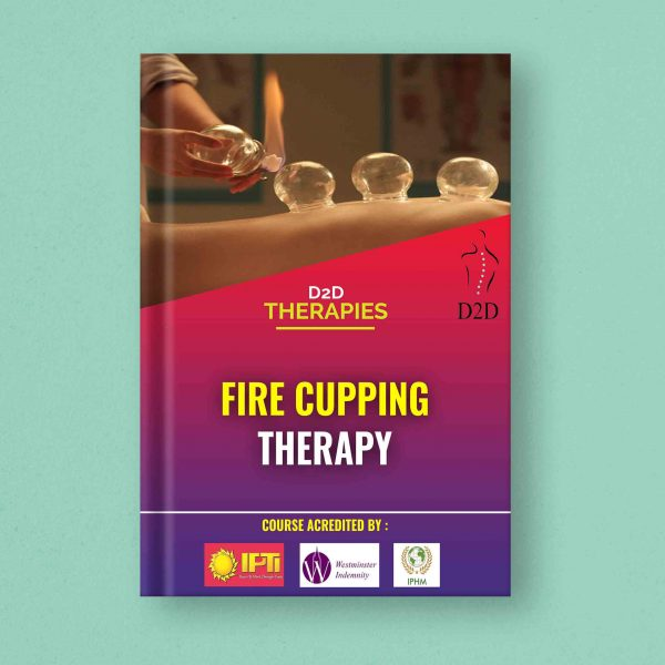 Fire Cupping Therapy course ebook